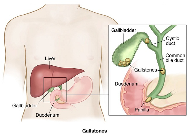 Gallbladder Cancer Treatment in Ahmedabad, Gallbladder Cancer Treatment in Gujarat, Gallbladder Cancer Treatment in Rajasthan, Gallbladder Cancer Treatment in Madhya Pradesh, Gallbladder Stone Treatment in Ahmedabad, Gallbladder Stone Treatment in Gujarat, Gallbladder Stone Treatment in Rajasthan, Best Doctor for Gallbladder Surgery in Ahmedabad, Best Doctor for Gallbladder Surgery in Gujarat, Best Doctor for Gallbladder Surgery in Rajasthan, Gallbladder Stone Surgery Cost in Ahmedabad, Gallbladder Stone Surgery Cost in Gujarat, Gallbladder Stone Surgery Cost in Rajasthan, Laparoscopic Gallbladder Surgery in Ahmedabad, Laparoscopic Gallbladder Surgery in Gujarat, Laparoscopic Gallbladder Surgery in Rajasthan, Best Gallbladder Surgeon, Best Hospital for Gallbladder Surgery, Gallbladder Doctor Near Me, Gallbladder Specialist, Gallbladder Specialist Near me, Gallbladder Surgeon